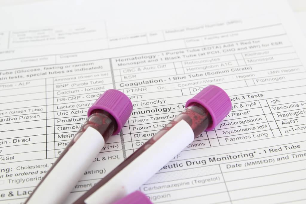 ΤΑ ΑΠΟΤΕΛΕΣΜΑΤΑ ΤΗΣ ΕΘΝΙΚΗΣ ΜΕΛΕΤΗΣ ΥΓΕΙΑΣ Hprolipsis ΓΙΑ ΗΠΑΤΙΤΙΔΕΣ Β, C ΚΑΙ HIV